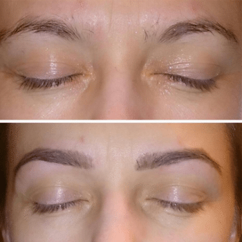 Rogaine Is The Best Inexpensive Way To Grow Thick Eyebrows
